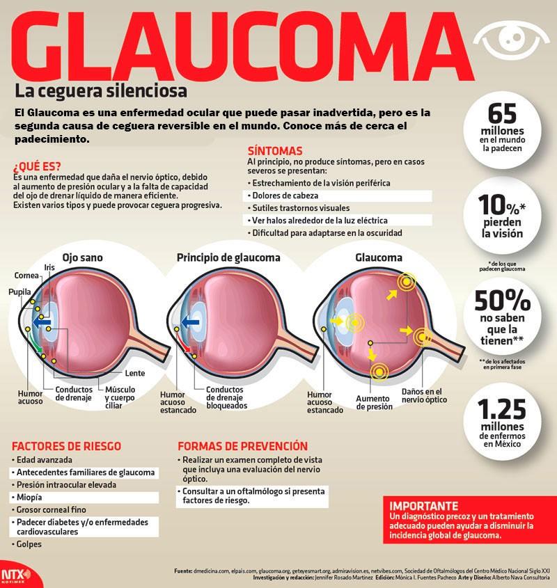 Glaucoma, la ceguera silenciosa