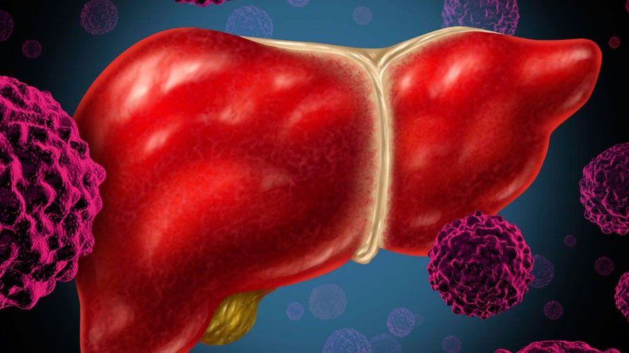 Las cicatrices del hígado